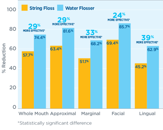 Plaque Removal – string vs water flosser